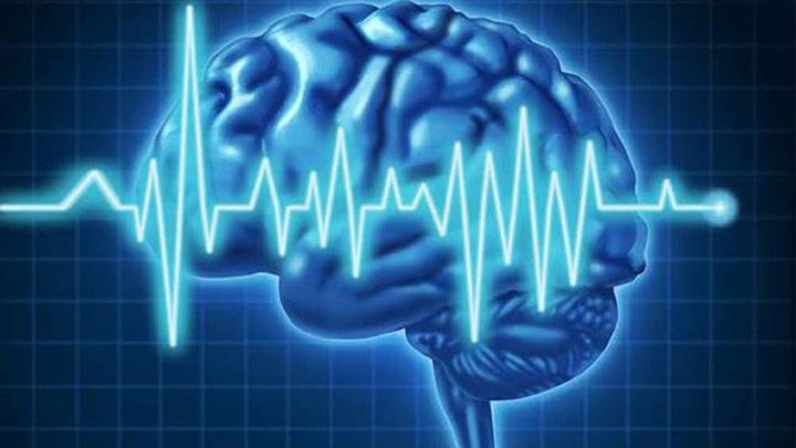7 dấu hiệu cảnh báo khối u não bạn nên biết