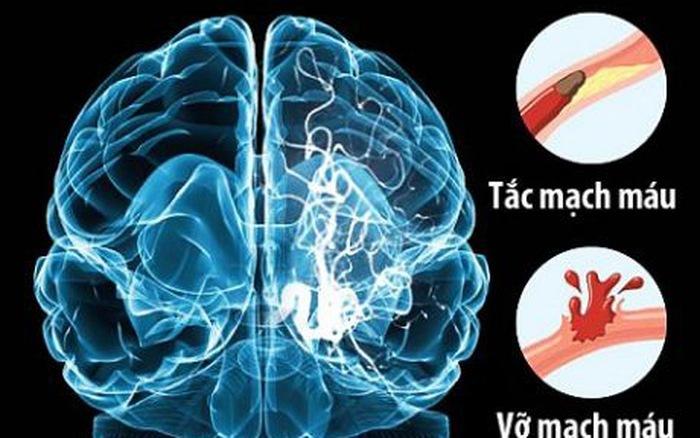 đột quỵ,tai biến mạch máu não