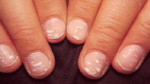 Đốm trắng trên móng tay 'tố' bệnh gì?