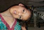 Bé gái 9 tuổi có đầu nằm ngang