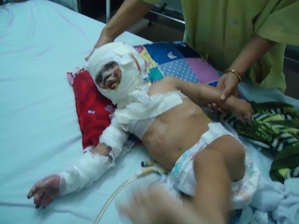 Bé trai vùng cao 1 tuổi bỏng nặng xin được cứu giúp