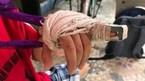 Phụ huynh phản ánh cô giáo đánh trẻ 5 tuổi gãy ngón tay