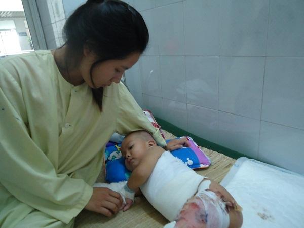 Con bỏng nặng cần phẫu thuật, bố mẹ bất lực cầu cứu