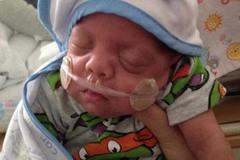 Đẻ non khi mới 23 tuần tuổi, cậu bé nặng chưa đầy nửa kg vẫn sống sót thần kỳ
