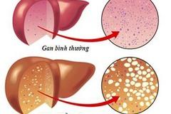 7 dấu hiệu cảnh báo gan bị nhiễm độc