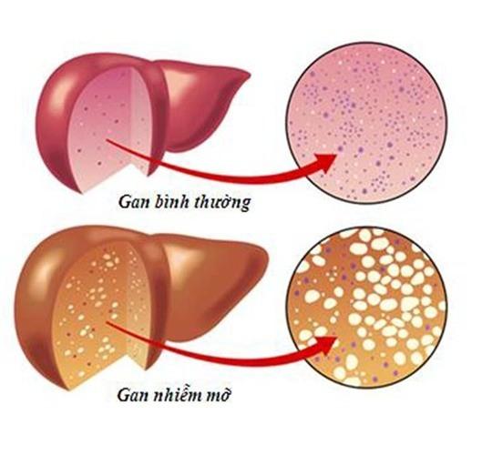 gan nhiễm mỡ,Dấu hiệu gan nhiễm mỡ