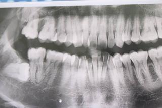 Răng khôn đâm thủng má, cô gái trẻ phải bỏ thai