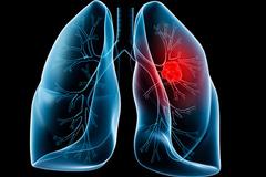 Điều trị ung thư phổi bằng phương pháp mới tại Singapore