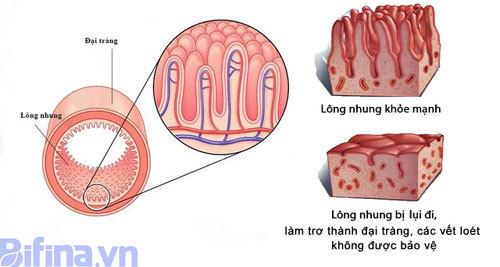 3 cách đối phó với bệnh viêm đại tràng