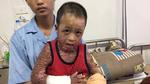 Bé trai bị cụt chân, biến dạng do bỏng nặng cần giúp đỡ
