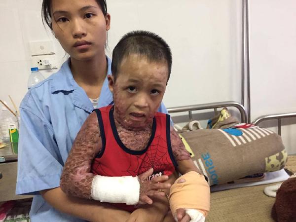 hoàn cảnh khó khăn,tai nạn thương tâm,ủng hộ người nghèo,ủng hộ hoàn cảnh khó khăn,từ thiện vietnamnet