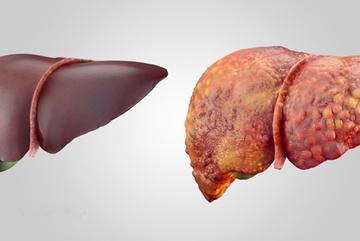 Nguyên nhân hàng đầu gây ung thư gan cần biết