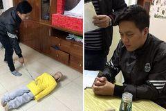 Hà Nội: Bé trai 10 tuổi bị bố đẻ bạo hành, từ 40kg còn 20kg