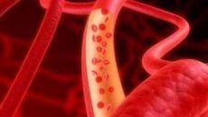 Máu nhiễm mỡ dễ gây biến chứng gì?