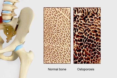 Vitamin K2 - bổ sung càng sớm, xương càng khỏe