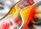 5 nguyên nhân chính dẫn đến hiện tượng mỡ máu cao