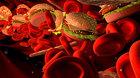 Triệu chứng và cách điều trị bệnh máu nhiễm mỡ