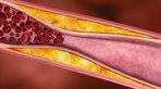 Máu nhiễm mỡ là gì? Cách ăn kiêng cho người bị máu nhiễm mỡ