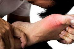 Người trẻ nên làm gì khi mắc bệnh gout?