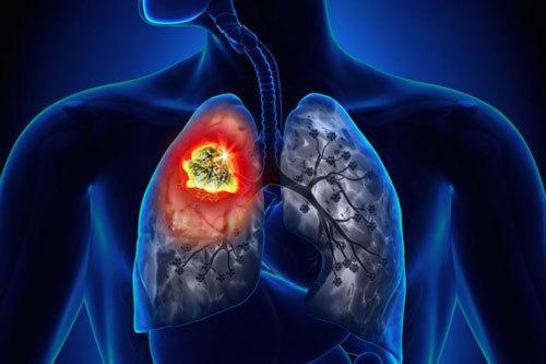 Dấu hiệu cảnh báo phổi có vấn đề