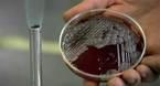 Phát hiện kháng thể bệnh than trong lính Triều Tiên đào tẩu