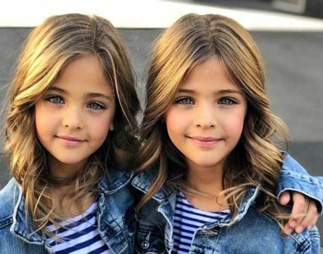 Ngắm cặp sinh đôi 'nhí' xinh nhất thế giới