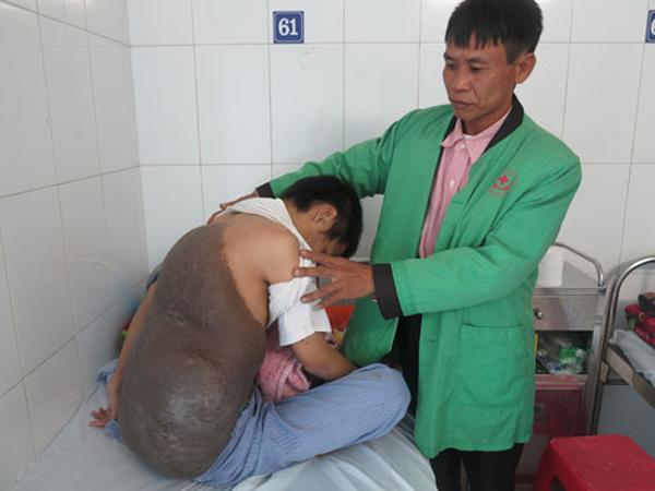 Chàng trai cõng mai rùa khổng lồ, 26 năm ngủ ngồi