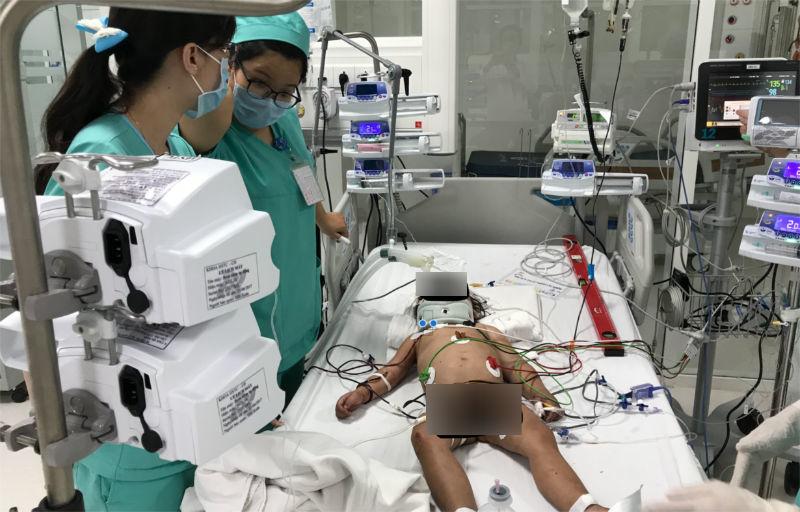 tai nạn trẻ em,tai nạn sinh hoạt,bệnh viện nhi đồng 1