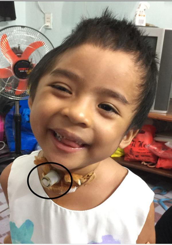 Bị nhà nội chối bỏ, bé gái 3 tuổi ở Sài Gòn sống lay lắt trong thương tật