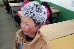 Đi bộ tới trường, cậu bé bị đóng băng toàn bộ tóc