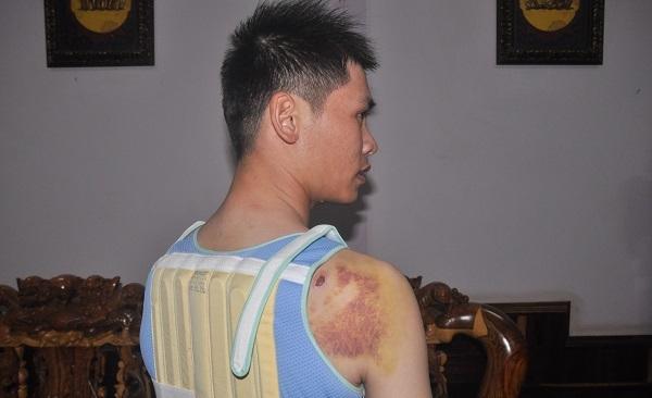con bí thư xã,đánh người nhập viện,dùng súng bắn người,khởi tố,cố ý gây thương tích,UBND xã Nhân Cơ,Công an tỉnh Đắk Nông