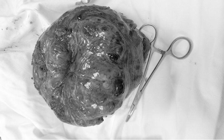 khối u,u dạ dày,bệnh viện nhân dân 115,ung thư,bệnh ung thư