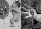 Khám thai định kỳ, nữ sinh Hà Nội sắp đẻ mà không biết