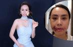 Á hậu Thuỳ Linh công khai khuôn mặt sưng phồng vì thẩm mỹ