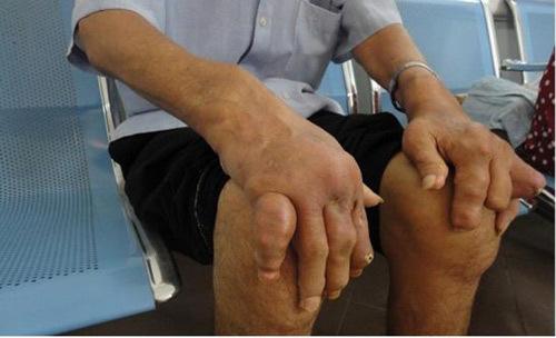 Hiểu bệnh gout từ A đến Z