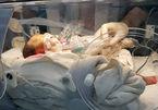 Bé sinh non 1,1 kg có ruột nằm trong lồng ngực