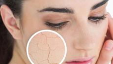 5 lưu ý vàng khi chăm sóc da mặt vào mùa hanh khô