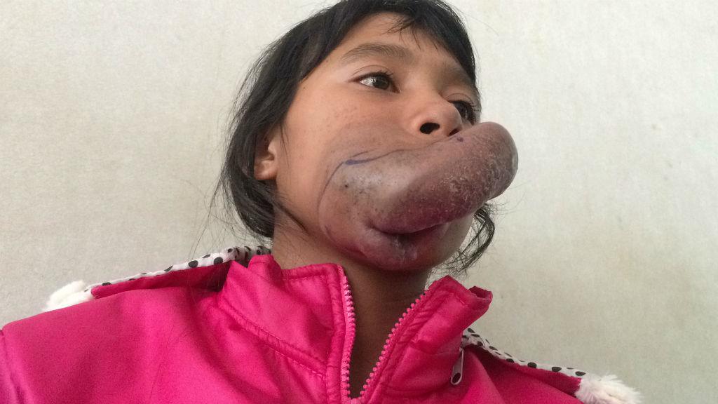 Cuộc sống khép kín của thiếu nữ có u máu khổng lồ ở miệng