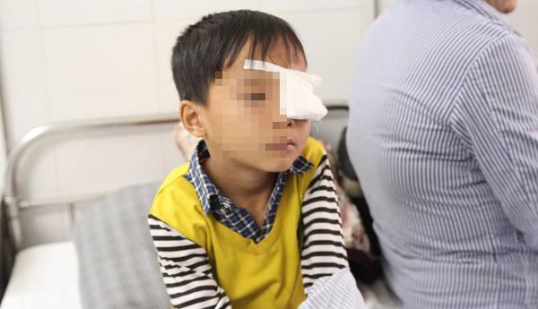 Bé trai bị dao đâm trúng mắt, tách làm đôi