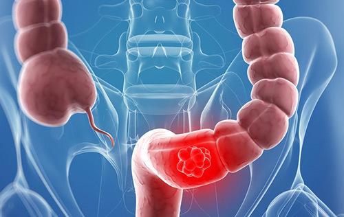 Hỗ trợ điều trị viêm đại tràng nhờ công nghệ Nhật