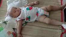 Ánh mắt mệt mỏi của bé gái 11 tháng tuổi ung thư máu