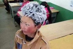 'Cậu bé băng tuyết' bị ăn chặn tiền ủng hộ?