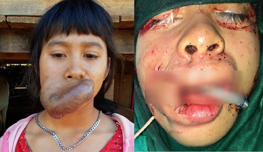 Phẫu thuật 'giải thoát' khối u máu khổng lồ ở miệng thiếu nữ