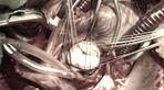 Suýt tử vong vì ổ vi trùng trú ngụ trong răng